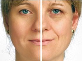 rostro de mujer con efectos comparados tras la radiofrecuencia